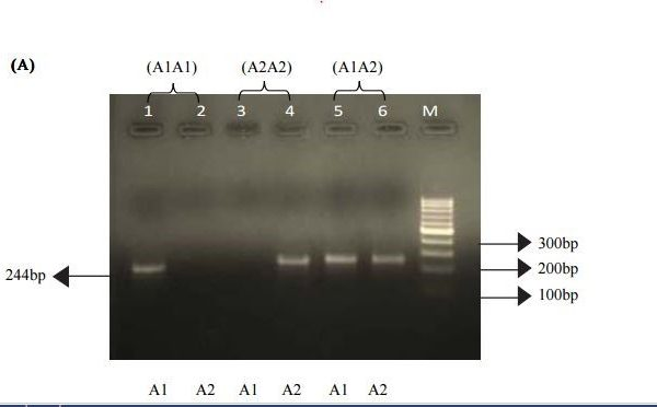 How to Test Bulls and Cows for the Beta Casein Gene Variants
